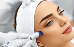 Top 5 Best Microdermabrasion Machines for Acne
